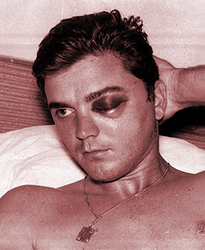 Tony Conigliaro resting in the hospital after getting beaned